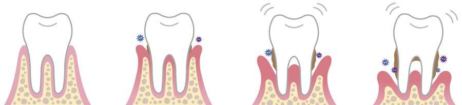 Parodontitis - Entstehung im Ablauf - nebeneinander